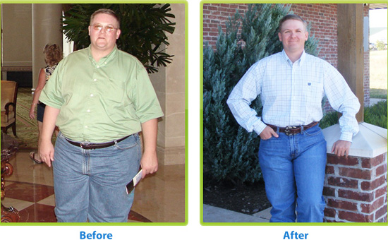 There are many Types of Bariatric Surgeries people can use to transform themselves